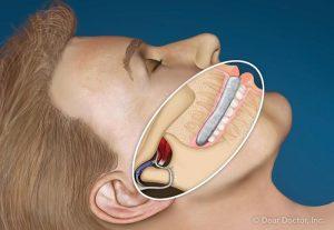 Ilustracija coveka koji koristi foliju za zube dok spava zbog nocnog bruksizma