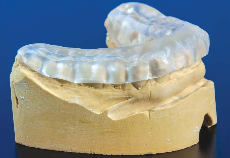 Splint za zube - naprava koja se pravi preko zuba jedne vilice kako bi svi delovi sistema za žvakanje dosli u idealan odnos.