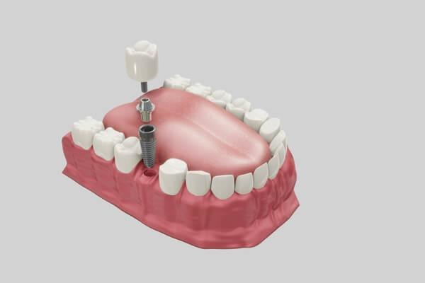 Ugradnja implanta u donju vilicu