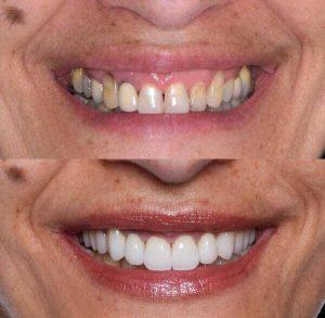 Osmeh pre i posle gingivektomije
