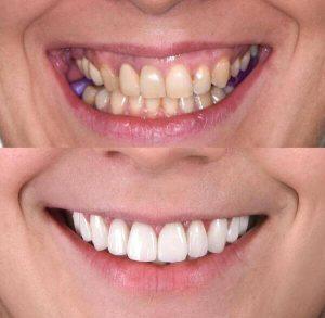 Osmeh pre i posle gingivoplastike
