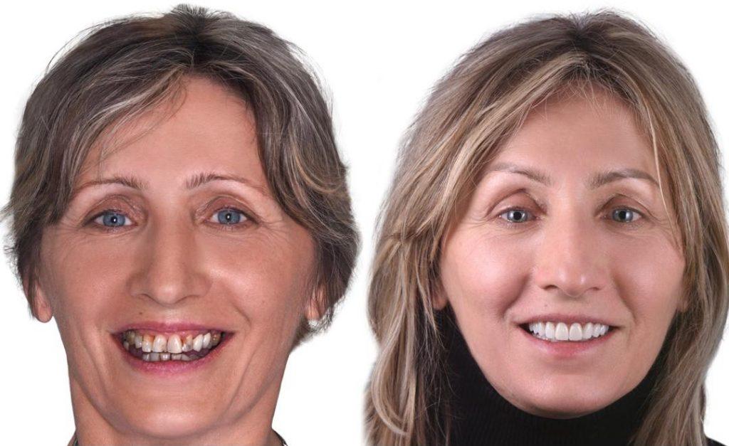 Slike pre i posle odradjenje gingivektomije