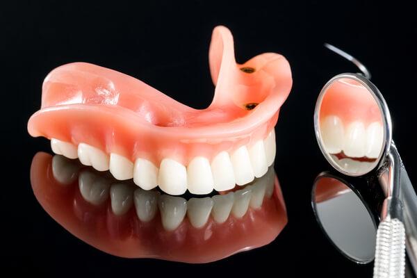 Zubne proteze - Totalna proteza na implantima